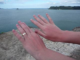 sunburn on hands